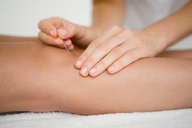 Therapien in der Chinesischen Medizin - Akupunktur
